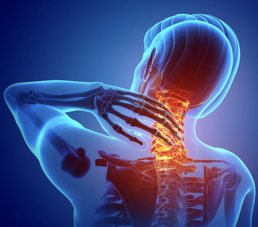 Symptoms of Cervical Discogenic Pain Syndrome