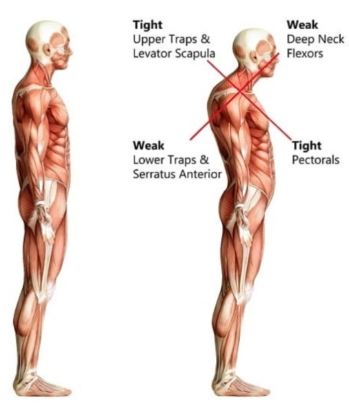 Neck Pain, Upper Crossed Syndrome,