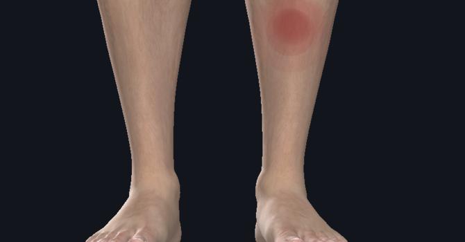 Medial Tibial Stress Syndrome, aka Shin Splints