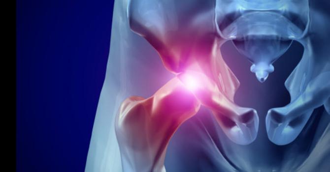 Femoral Acetabular Impingement (Anterior Hip Pinching)